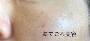 すっぴんの肌
